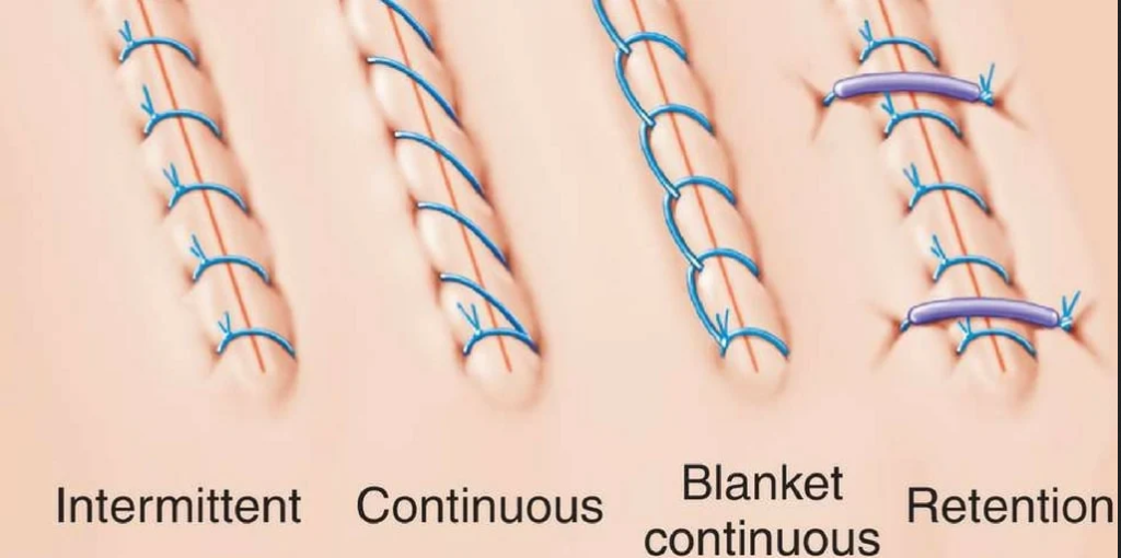 Different Stitches Types
